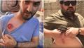 İsrail polisi Anadolu Ajansı çalışanlarını da yaraladı