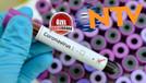 NTV'de ikinci koronavirüs vakası