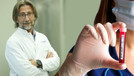 Koronavirüste ilk tedavi yöntemi bulundu