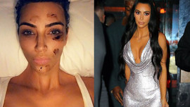 Sosyal medya sallandı! Kim Kardashian'a ne oldu?