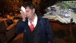 Demirağ'a saldırı görüntüleri ortaya çıktı!