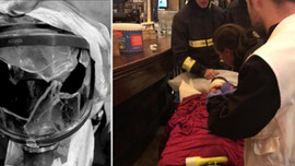 Polisin attığı gaz kapsülü AA muhabirini yaraladı