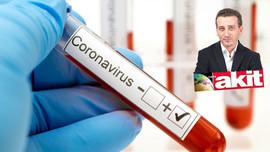 Akit yazarı 'Koronavirüs'ün faydaları'nı yazdı!