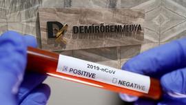Demirören Medya'da koronavirüs paniği!
