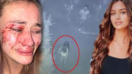 Ukraynalı model Daria Kyryliuk'ı kim darbetti?