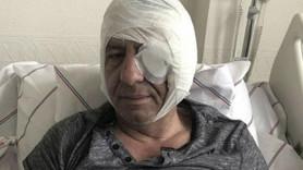 Gazeteci Demirağ'a saldıranlar serbest bırakıldı