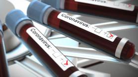 Corona virüsü korunma yolları nelerdir?