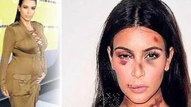 Kendall Jenner'ın Photoshop'lu fotoğraf isyanı!