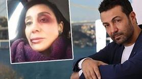 Gazeteci sevgilisini döven ünlü oyuncuya koruma kararı!