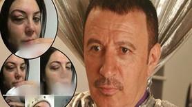 Mustafa Topaloğlu 18 yıllık eşini bu hale getirdi!