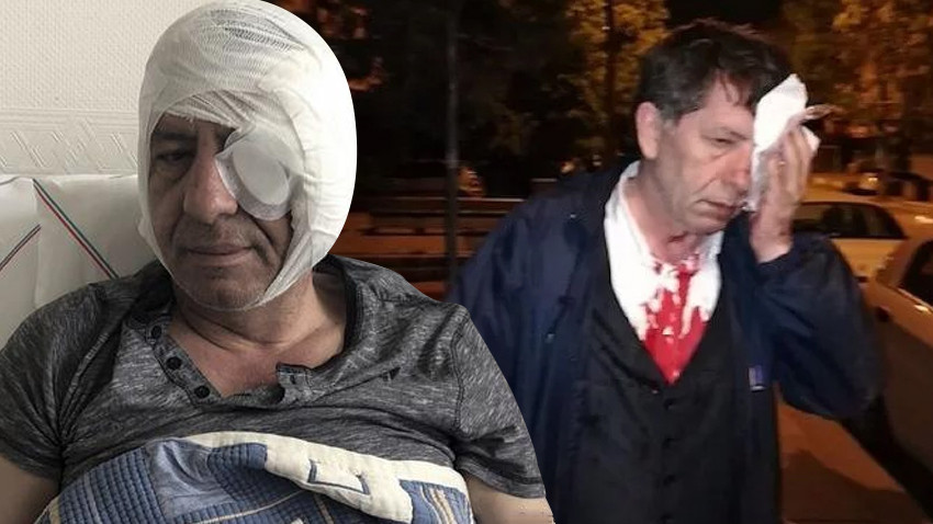 """Yeniçağ yazarından saldırı sonrası ilk yazı: """"Korkmuyorum"""""""