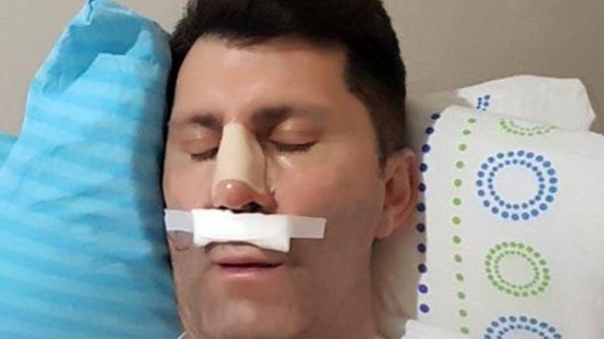 Talihsiz kaza! Ünlü oyuncu hastanelik oldu!