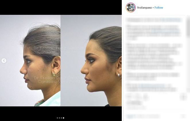 Venezuela Güzeli de estetikli çıktı! - Sayfa 3